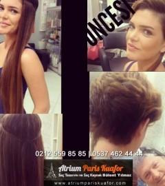 Mikro Görünmez Saç Kaynak Öncesi-Sonrası Videosu