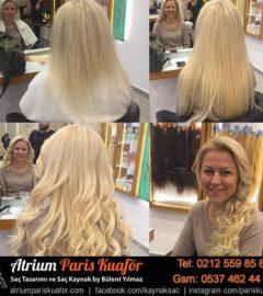 Saç Kaynak Kullanımı